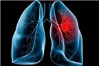 Mẹ cháu bị u phổi, phải làm sao BS ơi?