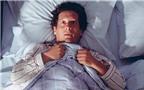 Ngủ mở mắt: Tật hay bệnh lý?