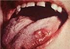 Dấu hiệu bất thường ở lưỡi phải đi khám ngay kẻo ung thư