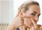 Trị sẹo rỗ theo lời khuyên của chuyên gia