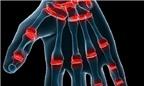 Tác hại khi bẻ khớp ngón tay