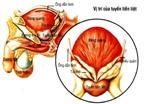 Triệu chứng viêm tuyến tiền liệt