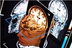 Món ăn bài thuốc phục hồi sau chấn thương sọ não
