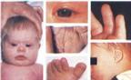 Nguyên nhân, biểu hiện của hội chứng Down