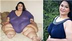Kỳ tích giảm cân