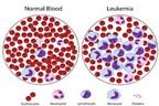 7 dấu hiệu ban đầu tiềm ẩn ung thư bạch cầu
