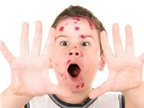 Bệnh thủy đậu và cách điều trị nhanh khỏi, không để lại sẹo