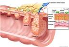 Ung thư hậu môn - trực tràng