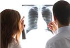 Dấu hiệu tiền ung thư phổi không thể bỏ qua