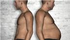 Biến mỡ trắng thành mỡ nâu để chống béo phì