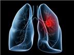 Ung thư biểu mô tuyến phổi