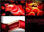 Những điều cần biết về bệnh tan máu bẩm sinh