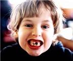 Giúp bé không bị sún răng