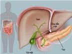 Ngăn ngừa viêm xơ đường mật
