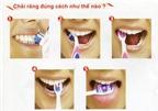 Một số bệnh răng miệng thường gặp