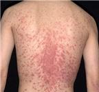 Mắc bệnh đỏ da toàn thân do thuốc