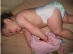 Điều trị bệnh Rubella ở trẻ như thế nào?