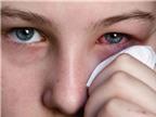 Cách phòng ngừa và xử trí khi bị bệnh đau mắt đỏ