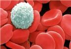 Dấu hiệu bệnh ung thư máu và cách điều trị