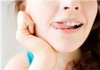 Cách giúp môi không bị khô khi ngồi điều hoà nhiều