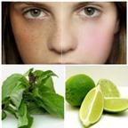 5 cách trị nám da tại nhà với những nguyên liệu cực rẻ