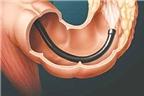 Viêm đại tràng và cách điều trị