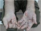 Phát hoảng với sức tàn phá của bệnh gout trên cơ thể người