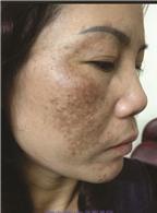 Cách hay điều trị nám da