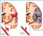 Đừng coi thường nguy cơ đột quỵ não!