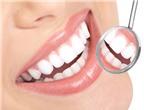 Cách nào tẩy trắng răng?