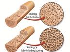 Cách phòng loãng xương