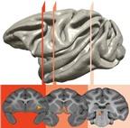 Rối loạn lo âu và trầm cảm có khả năng di truyền