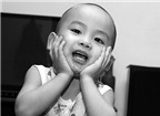 Trẻ mọc răng sữa đẹp thì răng vĩnh viễn sẽ xấu?