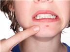 Các loại mụn và cách phòng tránh, chữa trị