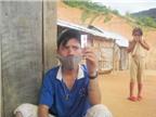 Gian nan chặn bệnh bạch hầu ở Phước Sơn