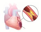 Cách phòng 2 bệnh tim thường gặp