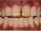 Dấu hiệu dễ dàng để nhận ra ung thư lưỡi ai cũng có thể biết
