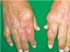 Triệu chứng điển hình của viêm khớp dạng thấp