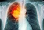 Một số bệnh dễ nhầm với lao phổi