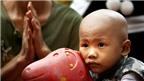 Dấu hiệu nhận biết các bệnh ung thư ở trẻ em cha mẹ phải biết