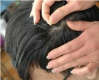Lý do tóc bạc sớm