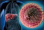 Nhiễm virut viêm gan B Khi nào cần điều trị?