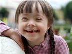 Những dấu hiệu nhận biết trẻ bị bệnh down