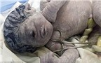 Chuyện lạ: Bé trai một mắt chào đời ở Ai Cập