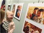 Nụ cười của em bé mắc bệnh Down