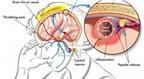 Những loại thuốc trị chứng đau nửa đầu