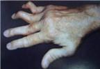 Phát hiện sớm viêm khớp dạng thấp để tránh tàn phế
