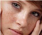 Phương pháp điều trị nám hiệu quả đến 95%