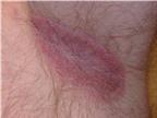 Mẹo trị dứt điểm bệnh nấm ngoài da không cần thuốc