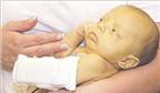 Bệnh vàng da sơ sinh